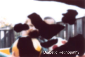 Same scene viewed by a person with diabetic retinopathy